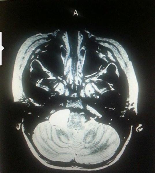 Diegel brain scan