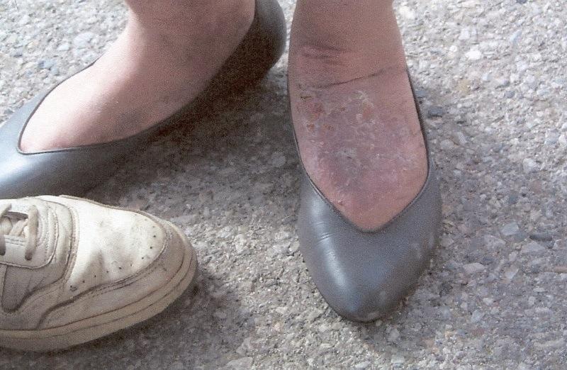 Nancy's healed up foot