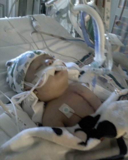 Steffen after heart surgery at 4 months