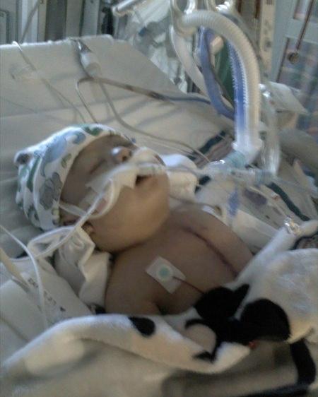 Steffen after heart surgery at 4 months