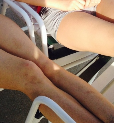 Odonnell Alexis bruised legs from Wolverine