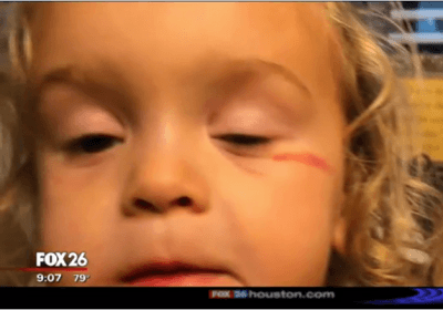 Randy Wallace Fox MK story Oct 2018 little girl black eye