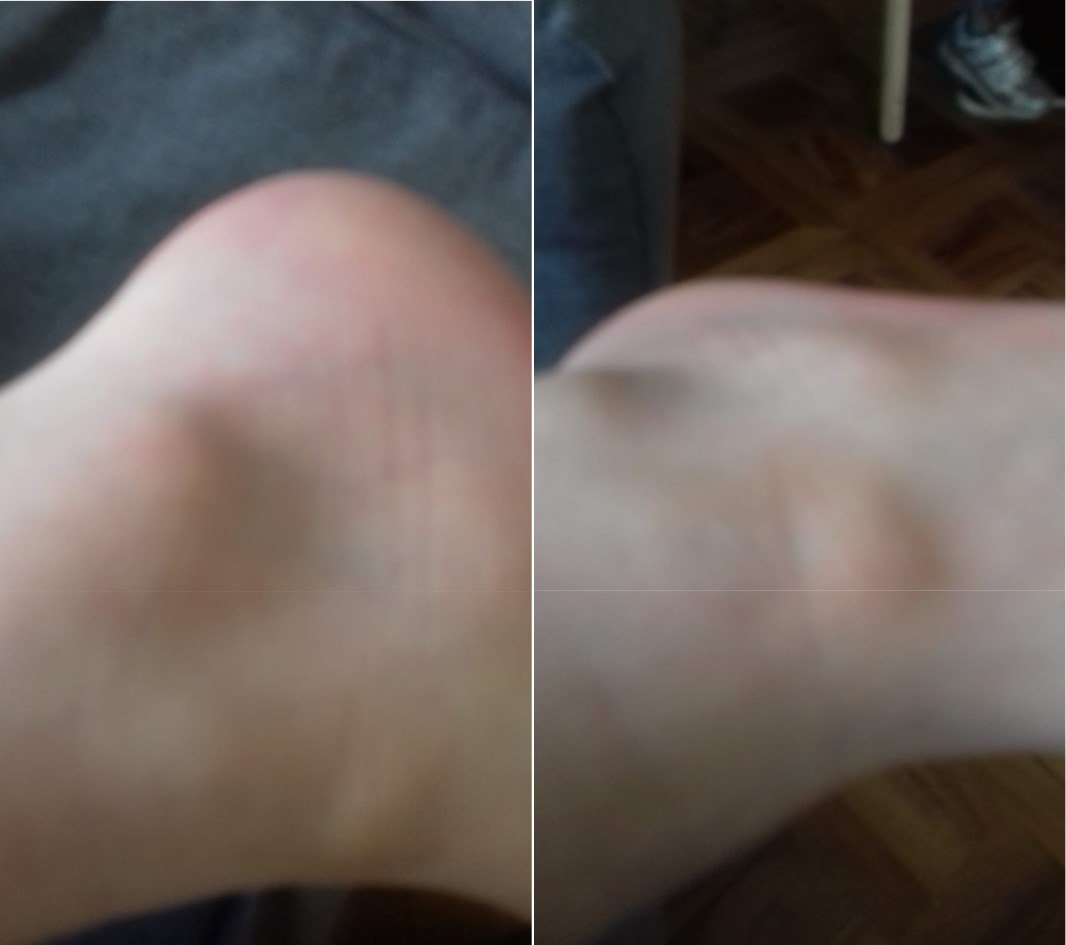 Cory's Ankle and Foot- 2 Weeks After Arriving at 2nd Foyer - Smashed With A Mettle Scooter By Another Boy